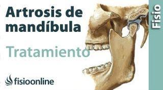 Artrosis de mandíbula - Qué es, causas, síntomas y tratamiento