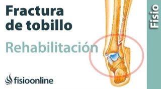 Rehabilitación de fracturas de tobillo con ejercicios, auto masajes y estiramientos