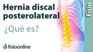 Protrusión o Hernial discal posterolateral o posteromedial. ¿Qué es?