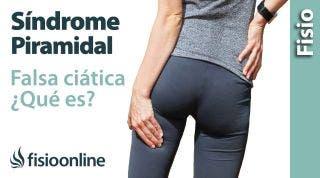 Cómo saber si tienes síndrome del músculo piramidal