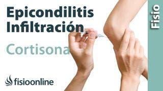 Epicondilitis o codo de tenista y las  infiltraciones de cortisona o corticoides