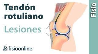 ¿Cómo se tratan las lesiones del tendón rotuliano?