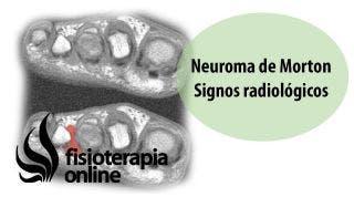 Neuroma de Morton. Signos radiológicos