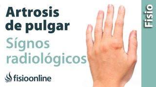 Rizartrosis o artrosis del pulgar. Signos radiológicos