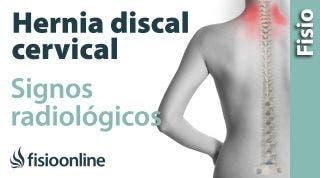 Hernia discal cervical. Signos radiológicos