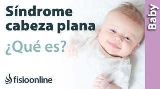 Síndrome de la cabeza plana o plagiocefalia del bebé