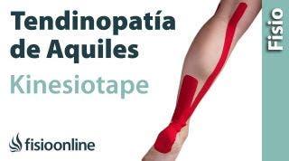 14 Kinesiostaping en la tendinopatia de Aquiles