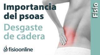 Desgaste de cadera. Importancia del psoas y su estiramiento
