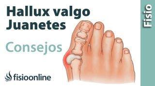 Hallux Valgus o juanete. Consejos y tratamiento con ejercicios, auto masajes y estiramientos