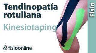 15 Kinesiostaping en la tendinopatia rotuliana
