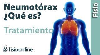 Neumotórax  Qué es, consejos y tratamiento a través de la fisioterapia respiratoria