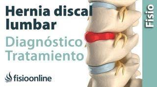 Hernia discal: Consejos, ejercicios y tratamiento de fisioterapia.