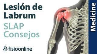 Consejos para solucionar la lesión labrum de hombro