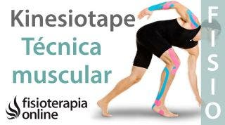 5 Técnica muscular del Kinesiotaping