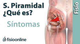 ¿Qué es el síndrome del músculo piramidal y cuáles son sus síntomas y causas?