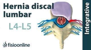 Hernia discal lumbar entre la L4 y L5 o cuarta y quinta vértebras lumbares