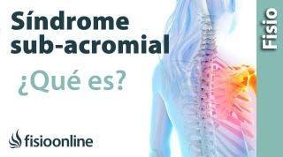 ¿Qué es el síndrome subacromial o síndrome de impactación?