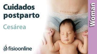 Cuidados de la CESÁREA EN CASA: Cómo cuidarte la cesárea