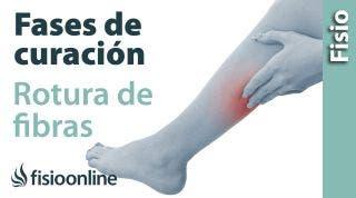 Rotura de fibras o fibrilar. Proceso y fases de curación.