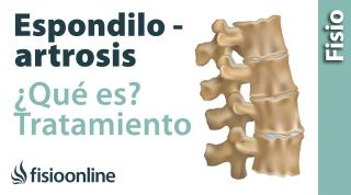 ¿Qué es la espondiloartrosis?