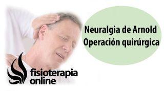 Neuralgia de Arnold. Operación quirúrgica o cirugía