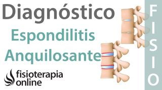 Espondilitis anquilosante - Qué es, diagnóstico y tratamiento