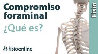 Compromiso foraminal o del neuroforamen. ¿Qué es?