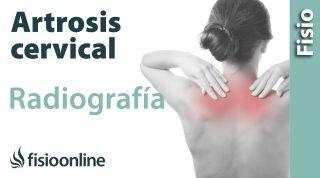 Artrosis cervical - Qué es y cómo se diagnostica en radiografías