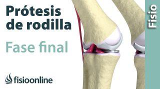 Rehabilitación de Prótesis de Rodilla - Tercera Fase