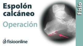 Cirugía y operación para el Espolón Calcáneo