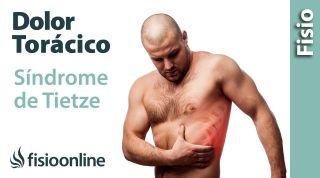 Qué es el síndrome de TIETZE  y su tratamiento(o síndrome condroesternal)