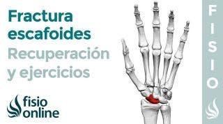 Fractura de ESCAFOIDES.  Rehabilitación, ejercicios y tiempo de recuperación