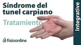 Tratamiento del síndrome de túnel carpiano izquierdo