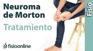 Neuroma de Morton. Tatamiento con ejercicios, auto-masajes y estiramientos