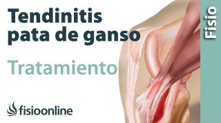 Tendinitis de la Pata de Ganso. Ejercicios, consejos y recomendaciones de un fisioterapeuta.