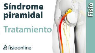Síndrome del piramidal. Tratamiento con ejercicios, auto masajes y estiramientos.