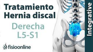 Tratamiento de la hernia discal L5 y S1 derecha y quinta lumbar y sacro