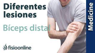 Conoce las diferentes lesiones del Bíceps distal