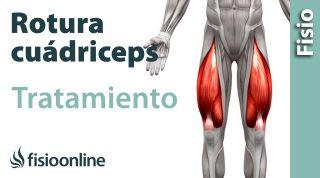 Rotura de fibras del cuádriceps. Tratamiento con ejercicios, auto masajes y estiramientos