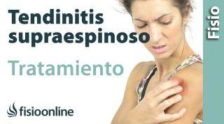 Tendinitis del supraespinoso. Tratamiento con ejercicios auto-masajes y estiramientos.
