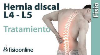 Tratamiento de hernia discal L4 y L5 derecha o cuarta y quinta vértebra lumbar