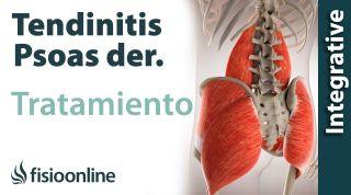 Tratamiento de la tendinitis del psao derecho o Psoitis derecha