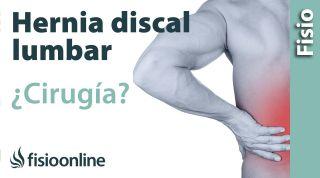 hernia discal lumbar: cuándo optar por la cirugía u operación quirúrgica