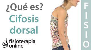 35# Cifosis dorsal. Hipercifosis y dorso plano. Qué son y cual es su importancia.
