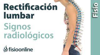 Rectificación lumbar. Signos radiológicos.