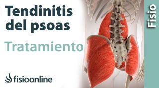 Psoitis o tendinitis del psoas. Tratamiento con ejercicios, auto masajes y estiramientos.