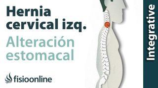 Hernia fiscal cervical izquierda por disfunción de estómago  Plantas medicinales y remedios natura