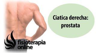 Cíatica o ciatalgia derecha y su relación con la disfunción de próstata