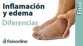Inflamación y edema - Diferencias y características