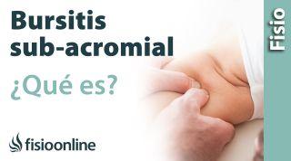 Bursitis sub acromial o del hombro